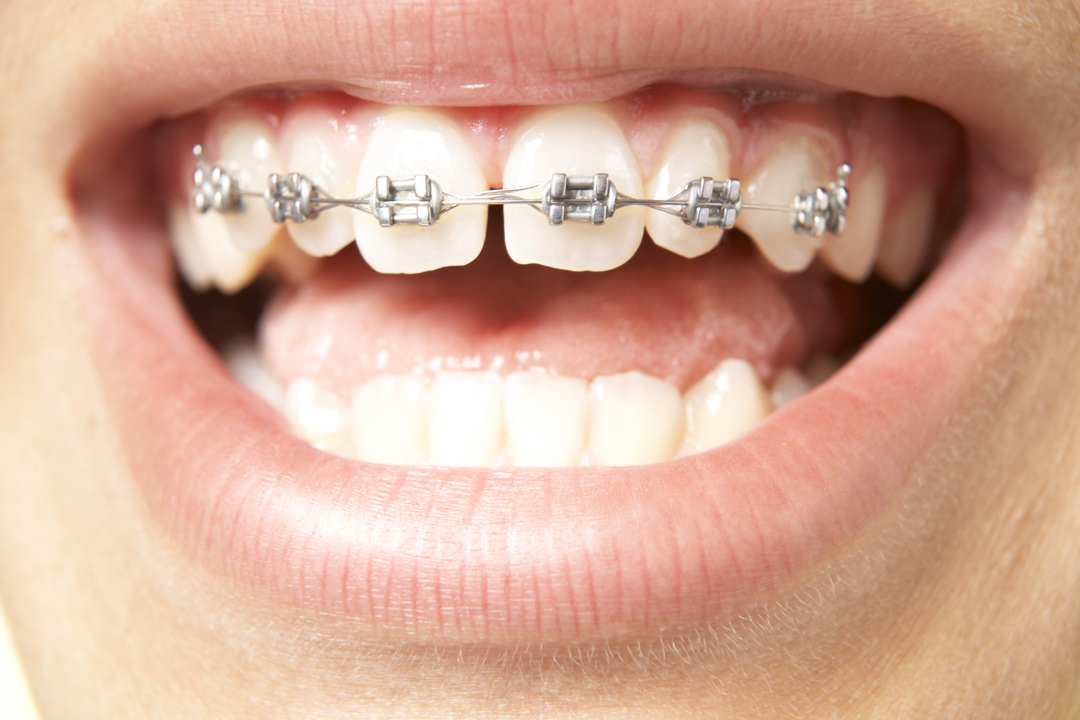 how to get straight teeth without braces or surgery