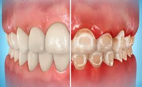 how to clean stained teeth with braces